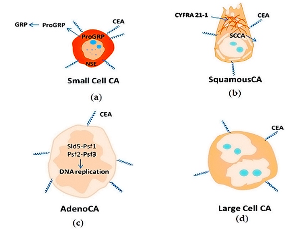 Biomarkers of Small Cell Lung Cancer (a), Squamous Lung Cancer (b), Lung Adenocarcinoma (c), Large Cell Lung Cancer (d).
